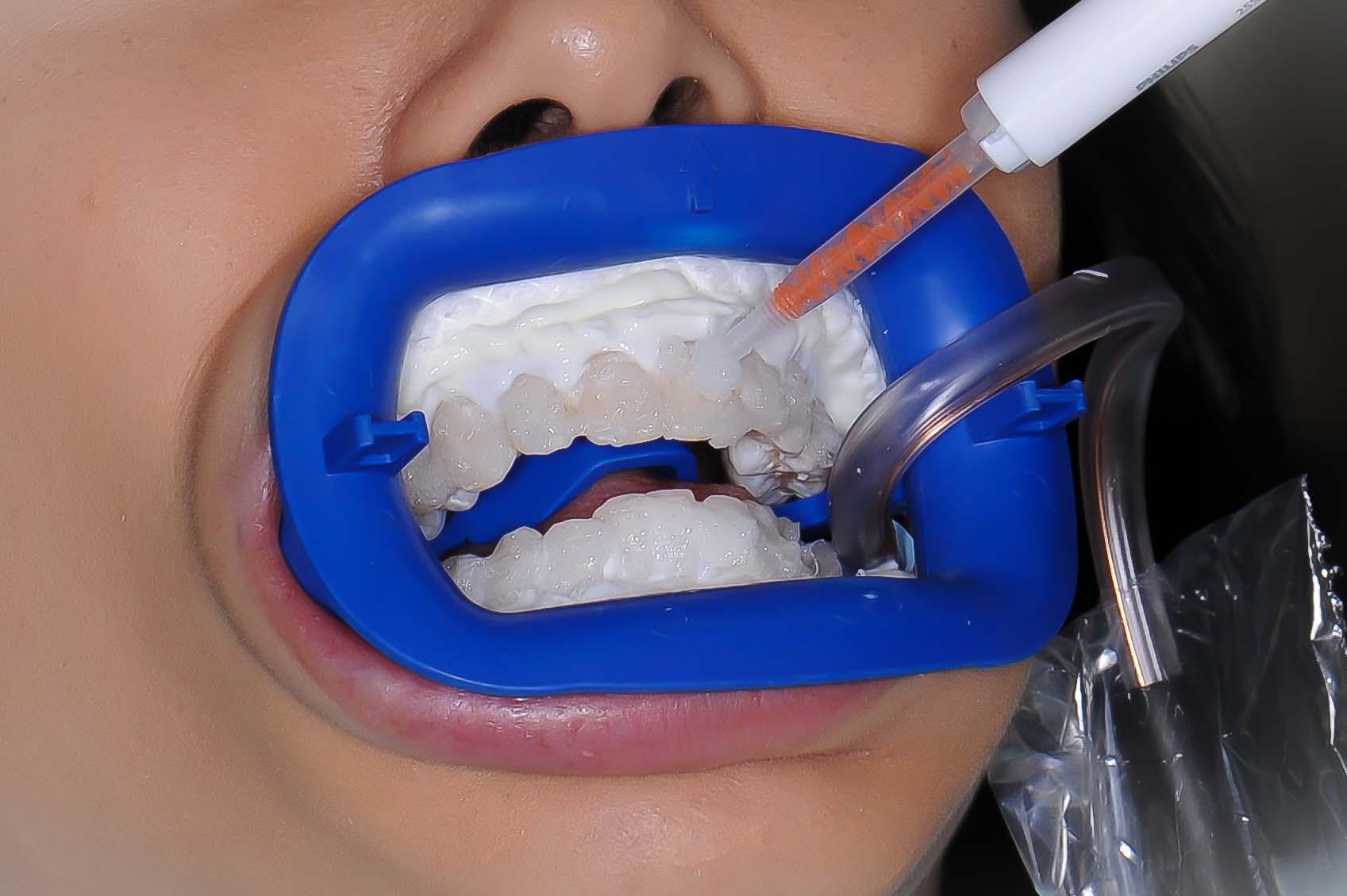отбеливание зубов zoom метро отрадное